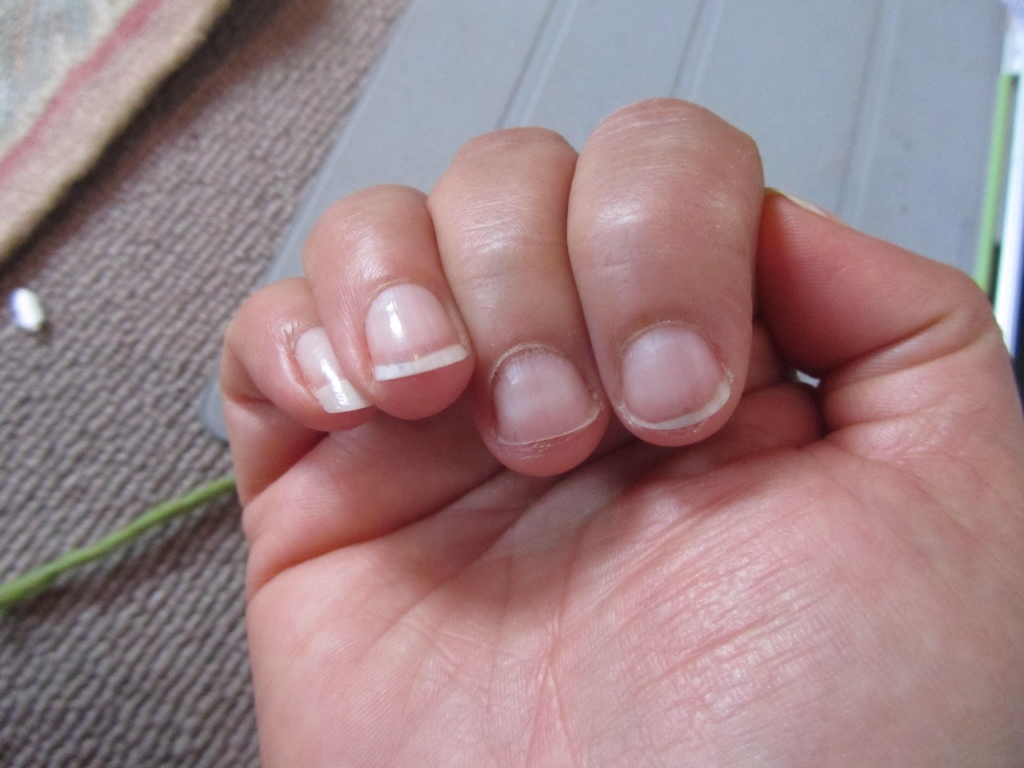 Artistic Gel Nails: the Aftermath – msalliance
